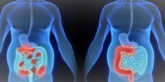 سرطان القولون و المستقيم – أعراضه و طرق علاجة و مراحل تطوره بالتفصيل