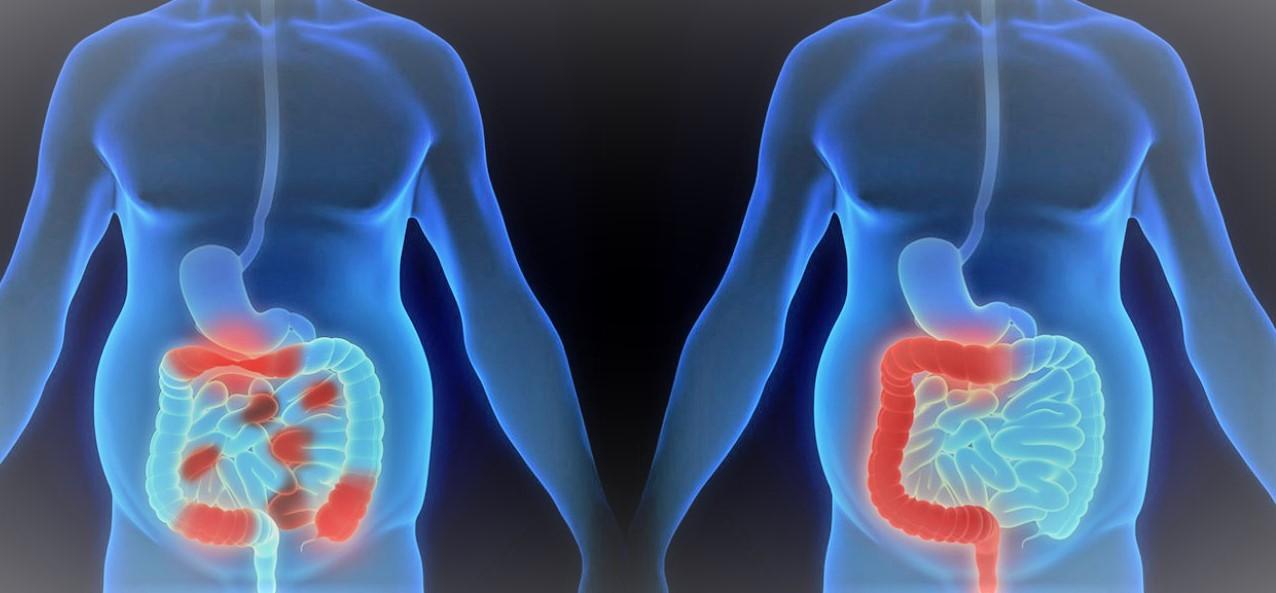 سرطان القولون و المستقيم