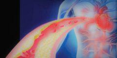احتشاء عضلة القلب,أعراض احتشاء القلب,أنواع احتشاء عضلة القلب