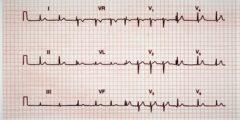 تخطيط القلب,شرح تخطيط القلب و العوامل التي تؤثر عليه