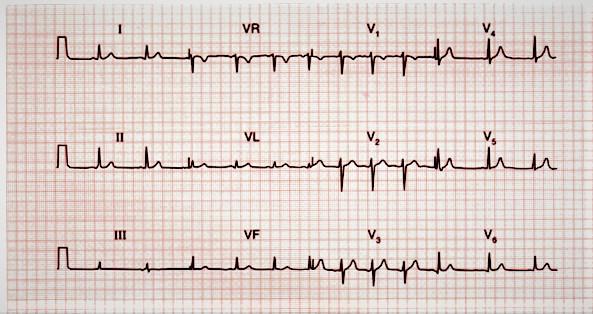 تخطيط القلب